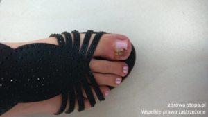 podologia lublin podolog lublin wrastające paznokcie wrastający paznokieć