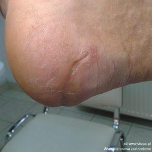 stopa cukrzycowa podologia lublin podolog lublin